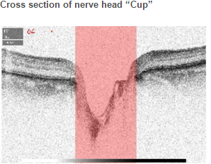 """Cross section of nerve head """"Cup"""""""