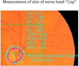 """Measurement of size of nerve head """"Cup"""""""