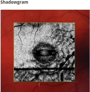 Shadowgram