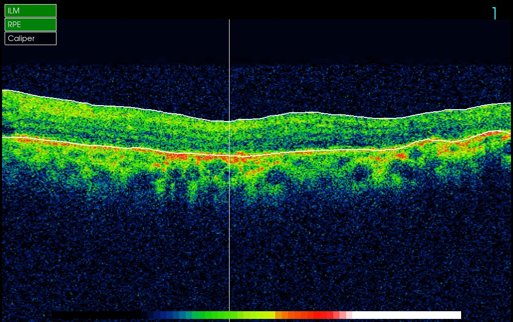 Nerve_Thinning_old_lazer_scars_more_reflection_from_RPE_Diabetic