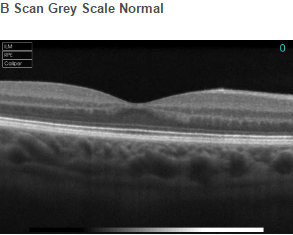 B Scan Grey Scale Normal