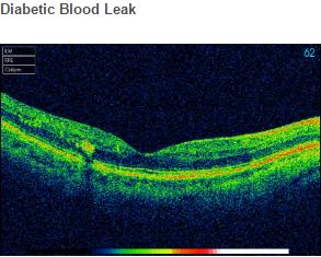 Diabetic Blood Leak