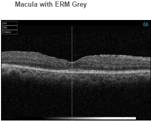 Macula with ERM Grey