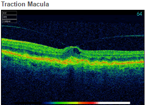 Traction Macula