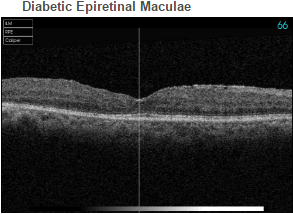 Diabetic Epiretinal Maculae