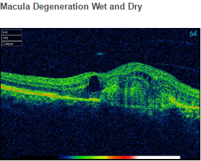 Macula Degeneration Wet and Dry