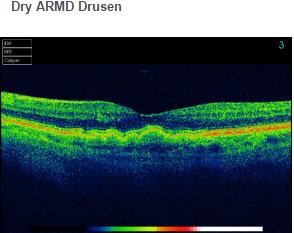 Dry ARMD Drusen