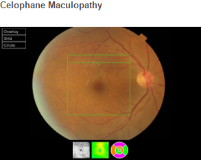 Celophane Maculopathy