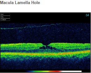 Macula Lamella Hole