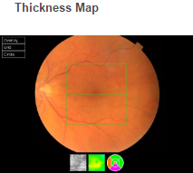 Thickness map