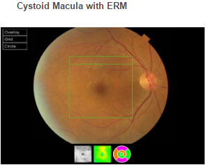 Cystoid Macula with ERM