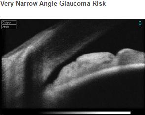 Very Narrow Angle Glaucoma Risk