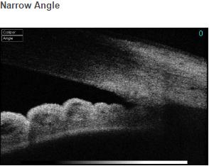 Narrow Angle